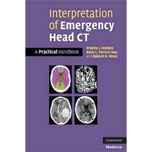 Interpretation of Emergency Head CT (AMAZON)