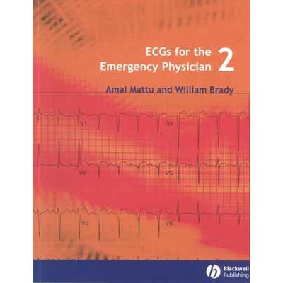 ECGs for the Emergency Physician 2 (AMAZON)