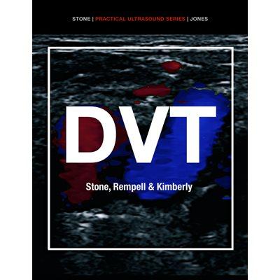 Practical Ultrasound Series: Deep Venous Thrombosis ACEP iBook